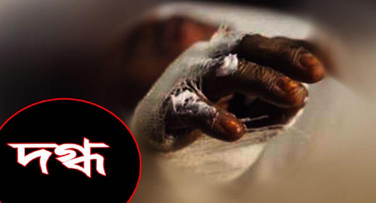 মিরপুরে গ্যাস বিস্ফোরণ, নিরাপত্তাকর্মী দগ্ধ